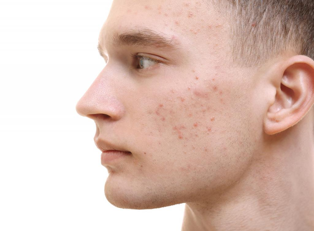 acne vulgaris Acne vulgaris is the formation of comedones, papules, pustules, nodules, and/or cysts as a result of obstruction and inflammation of pilosebaceous units (hair follicles and their accompanying sebaceous gland) acne develops on the face and upper trunk it most often affects adolescents diagnosis is.