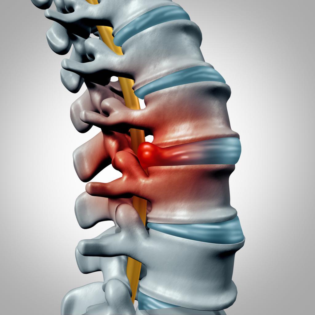 Упражнения для спины при протрузии поясничного отдела позвоночника