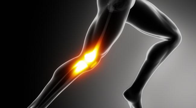 Схематичное изображение боли в колене