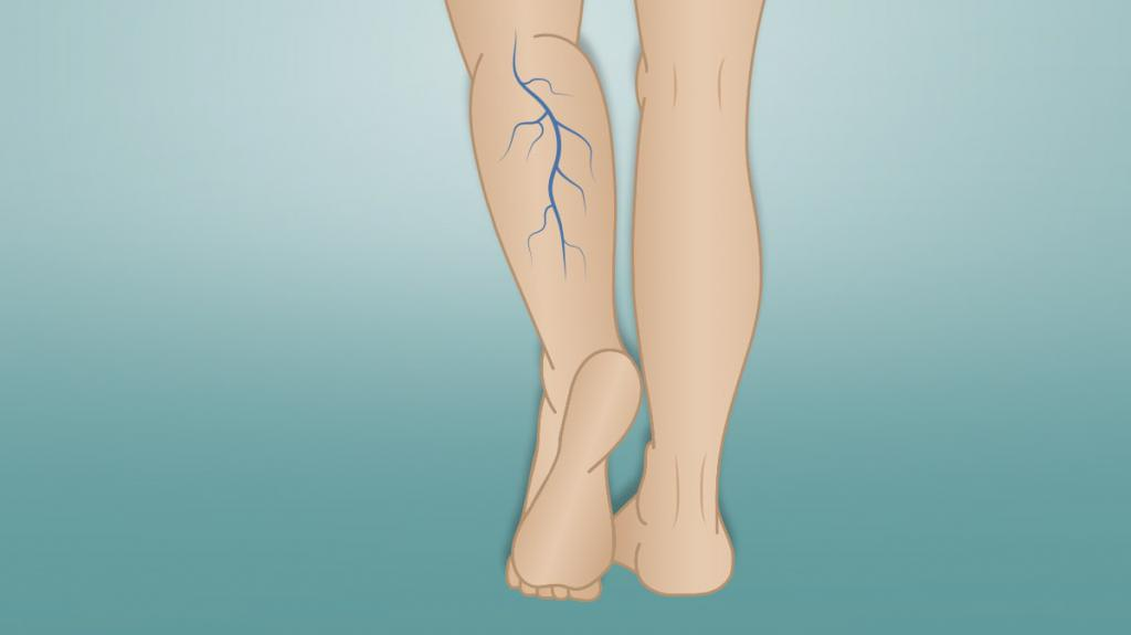 Упражнения при варикозе ног – какие полезно, а какие вредно делать